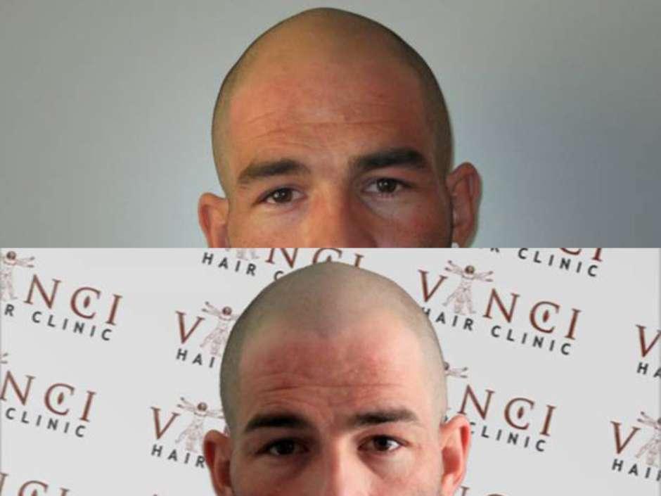 Antes e depois do implante capilar (Foto: Vinci Hair Clinic / Divulgação)