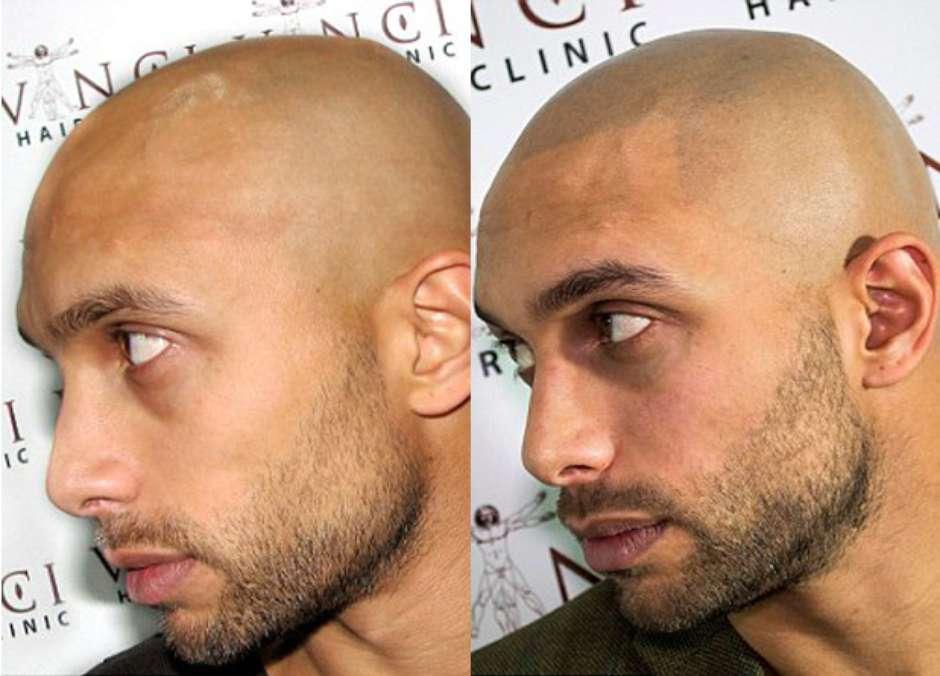 Resultado do implante capilar é visível (Foto: Vinci Hair Clinic / Divulgação)