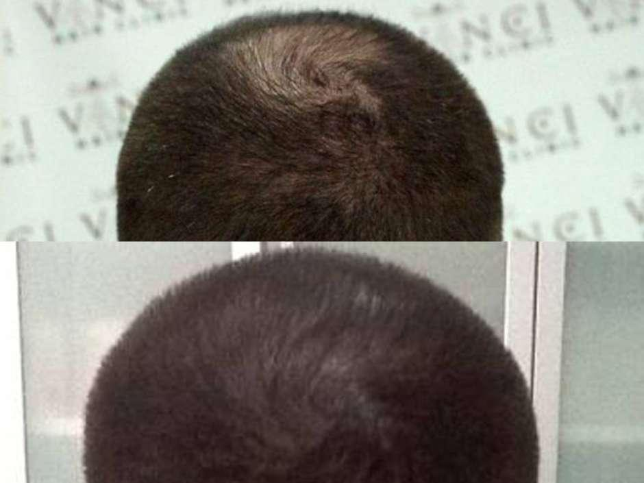 Técnica tem que ser feita por um especialista (Foto: Vinci Hair Clinic / Divulgação)