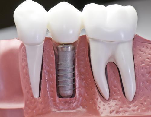 Implante dentário de graça é possível (Foto: Divulgação)