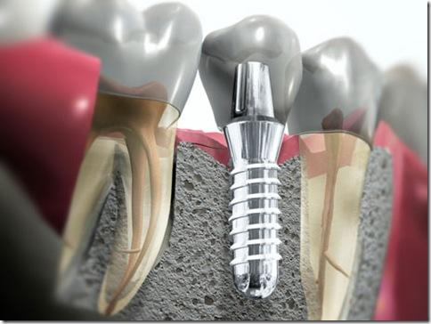 Cuidado com os implantes dentários de graça (Foto: Divulgação)