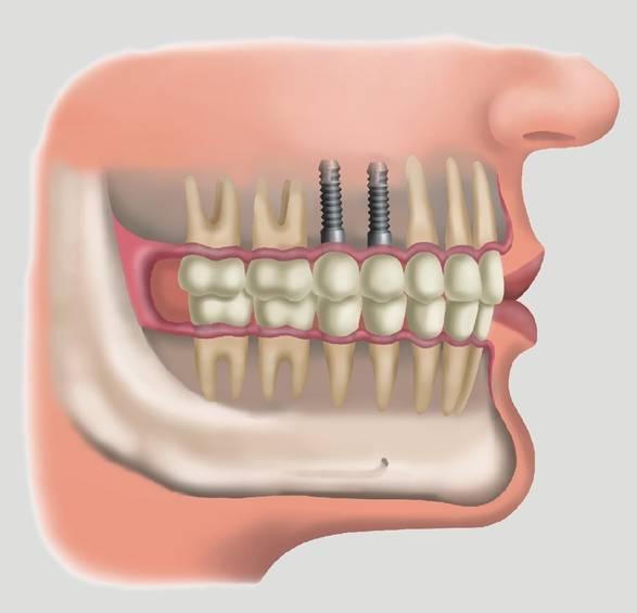 Tenha cuidado com o implante dentário, mas não deixe de fazer se o seu caso pedir (Foto: Divulgação)