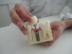 Implantes Dentários Gratuitos e de baixo custo