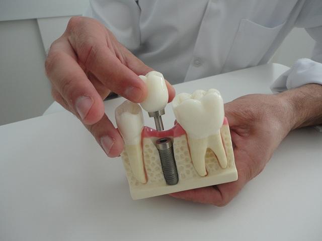 Implante dentário gratuitos ou de baixo custo (Foto: Divulgação)