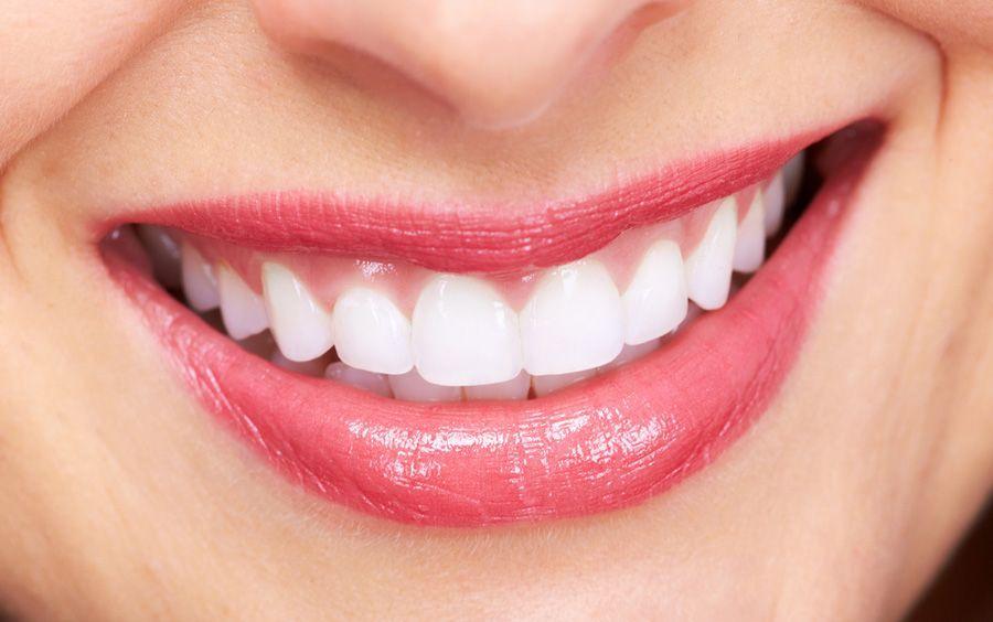 Dentes são perfeitos (Foto: Reprodução/Implante Dentário Preço)