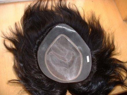 Prótese capilar (Foto: Reprodução/Queda de Cabelo Club)
