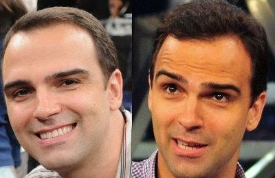 Diferença é visível antes e depois do implante capilar (Foto: Reprodução/Tudo sobre Transplante Capilar)