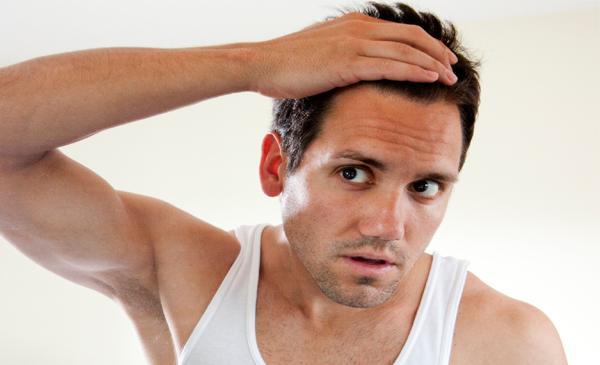 Tratamento para queda de cabelo masculino (Foto: Reprodução/Queda de Cabelo)