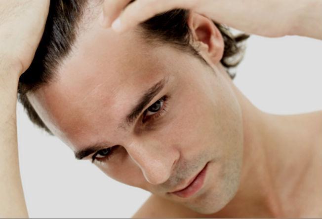 Homens de cabelo liso conseguem esconder melhor a calvície  (Foto: Reprodução/Homens no Espelho)