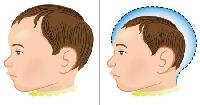 Entenda o que é Microcefalia 05