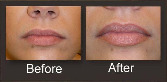 Antes e depois da micropigmentação labial. (Foto: Reprodução/Stuff to Buy)
