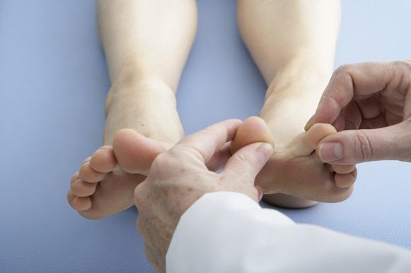 Pomadas e ajudam a aliviar os sintomas. (Foto Ilustrativa)