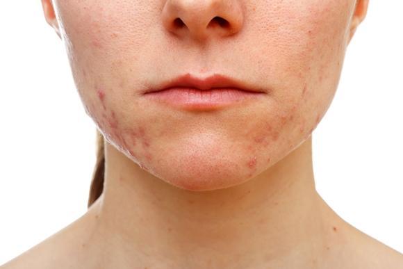 Lesões avermelhadas e com pus tomam conta da pele. (Foto Ilustrativa)