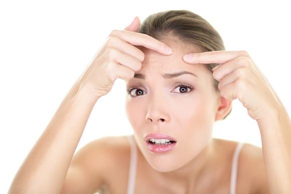 Alterações hormonais podem causar acnes. (Foto Ilustrativa)