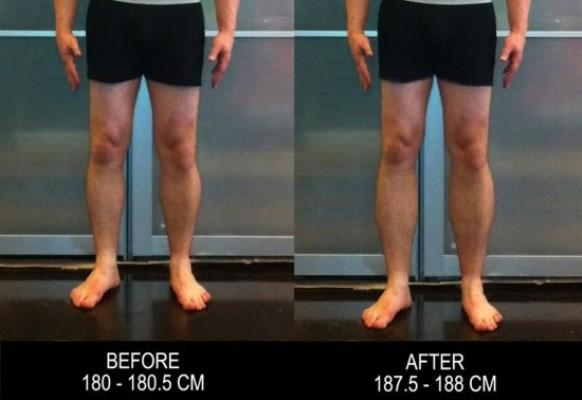 Antes e depois da cirurgia para ficar alto. (Foto: Reprodução/Saúde Curiosa)