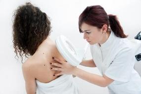 Pano Branco sintomas e tratamentos
