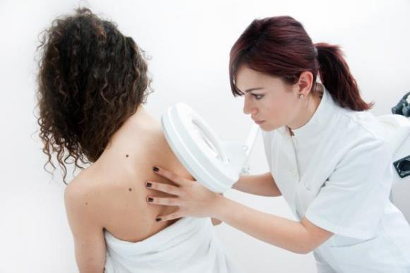 O diagnóstico preciso pode ser feito por um dermatologista. (Foto Ilustrativa)