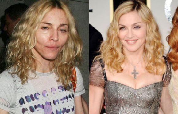 Madonna (Foto Ilustrativa)