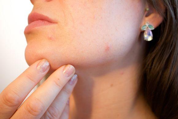O aparecimento de acne em grandes quantidades pode indicar alterações hormonais (Foto Ilustrativa)