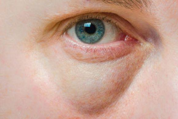 Um dos sinais do hipotireoidismo pode ser o inchaço nas pálpebras (Foto Ilustrativa)