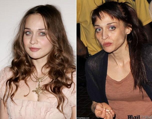 Jovem antes e depois de ter problemas com as drogas (Foto: Divulgação)