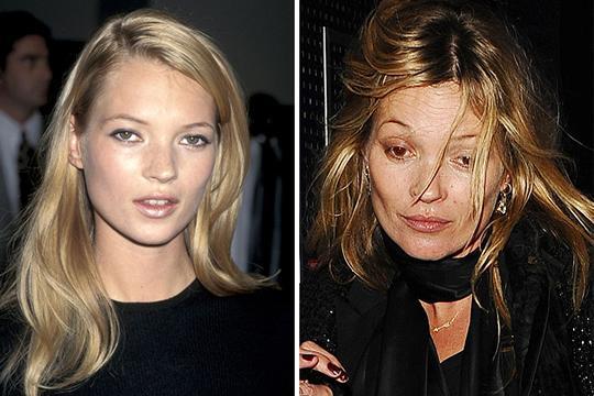 10 celebridades antes de depois do uso de drogas - Kate Moss (Foto: Divulgação)