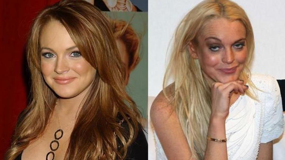 10 celebridades antes de depois do uso de drogas - Lindsay Lohan (Foto: Divulgação)