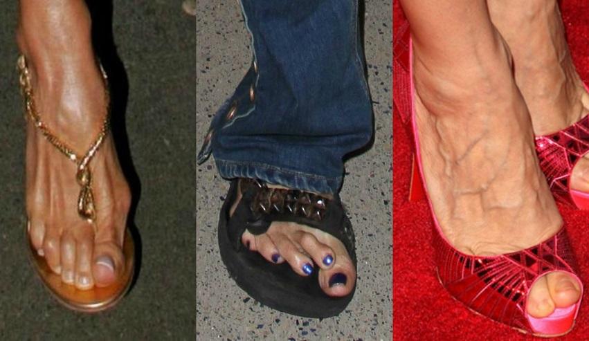 10 pés horríveis de famosas (Foto: Divulgação)