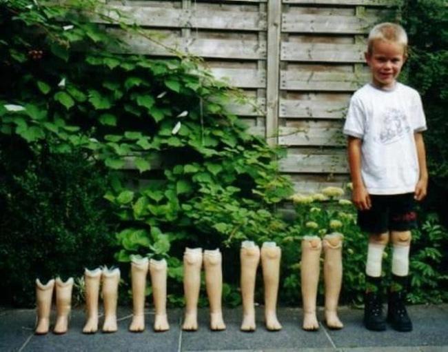 Para mostrar o crescimento do filho alguns pais colocam riscos em paredes marcando a estatura, mas nesse caso a medição teve as perninhas artificiais desa criança. Emocionante ! (Foto: Divulgação)