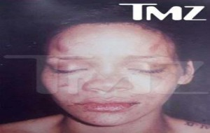 Foto Rihanna após agressão