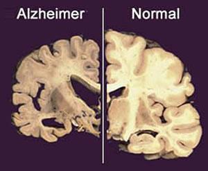 Como Evitar o Mal de Alzheimer