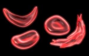 Anemia falciforme – o que é, tratamento