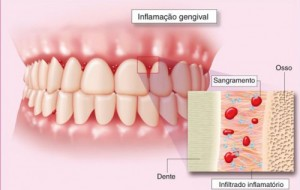 Gengivite: sintomas, causas, tratamento