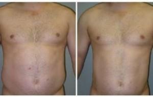 Abdominoplastia – Cirurgia, clínicas