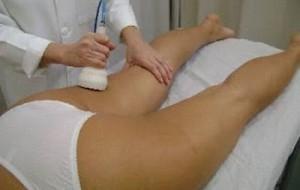 Modelagem do corpo com champagneterapia: o que é