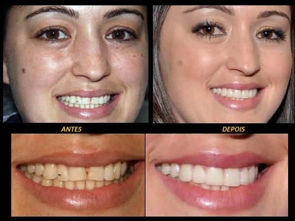 Tag Lentes De Contato Dental Preco Yahoo