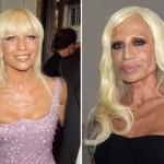 624640 Celebridades antes e depois da plástica fotos 11 150x150 Celebridades antes e depois da plástica: fotos