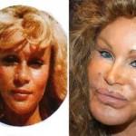 624640 Celebridades antes e depois da plástica fotos 12 150x150 Celebridades antes e depois da plástica: fotos