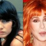 624640 Celebridades antes e depois da plástica fotos 15 150x150 Celebridades antes e depois da plástica: fotos