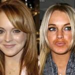 624640 Celebridades antes e depois da plástica fotos 150x150 Celebridades antes e depois da plástica: fotos
