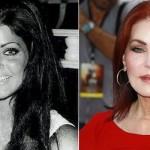 624640 Celebridades antes e depois da plástica fotos 16 150x150 Celebridades antes e depois da plástica: fotos