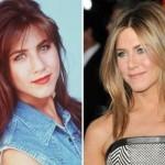 624640 Celebridades antes e depois da plástica fotos 6 150x150 Celebridades antes e depois da plástica: fotos