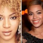 624640 Celebridades antes e depois da plástica fotos 7 150x150 Celebridades antes e depois da plástica: fotos