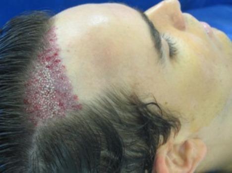 Fortalecer o cabelo da perda por remédios de gente
