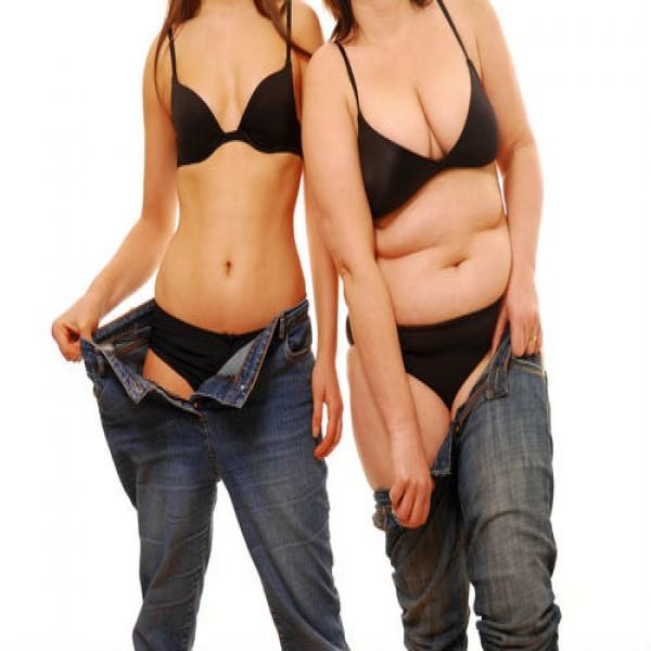 Resultado de imagem para redução estomacal fotos