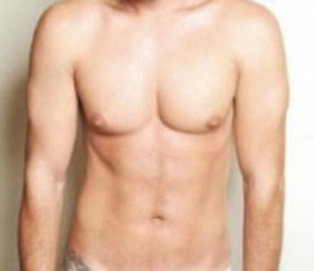 Cirurgia-Plastica-Para-Homens