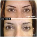 maquiagem definitiva 7 150x150 Maquiagem Definitiva Fotos Antes e Depois