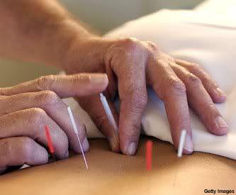 Acupuntura: agulhas que curam