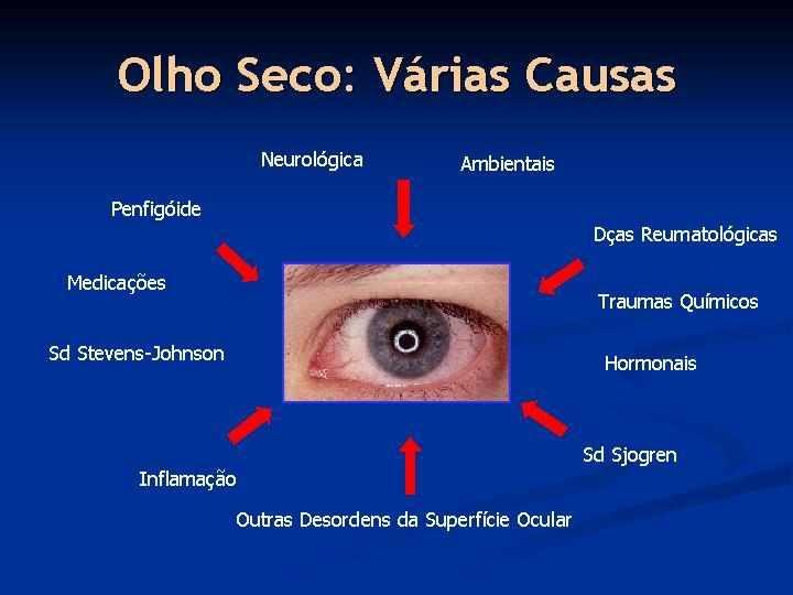 Sindrome Olho Seco