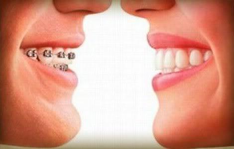 Plano Odontológico Medial
